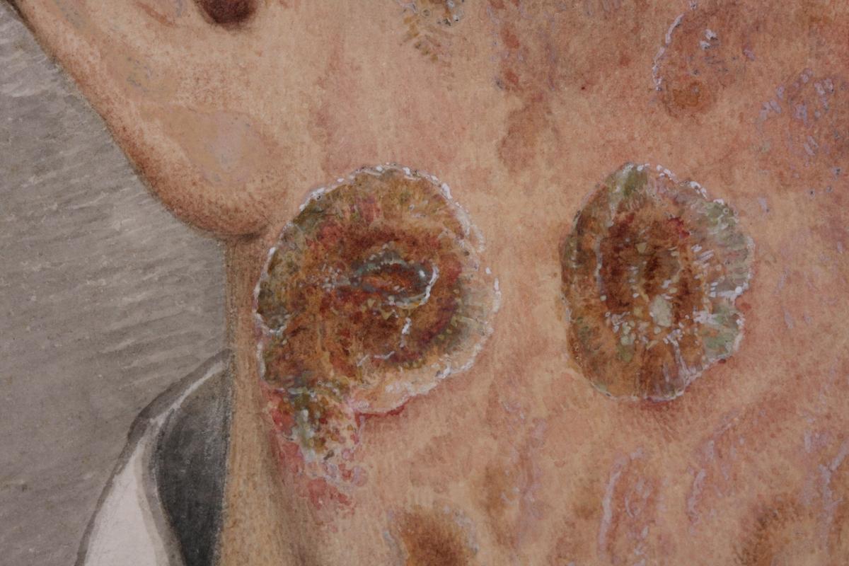 """Ifølge museets papirprotokoll illustrasjon til Boeck og Danielssens """"Hudens Sygdomme"""", 14 stk. i samme mappe"""